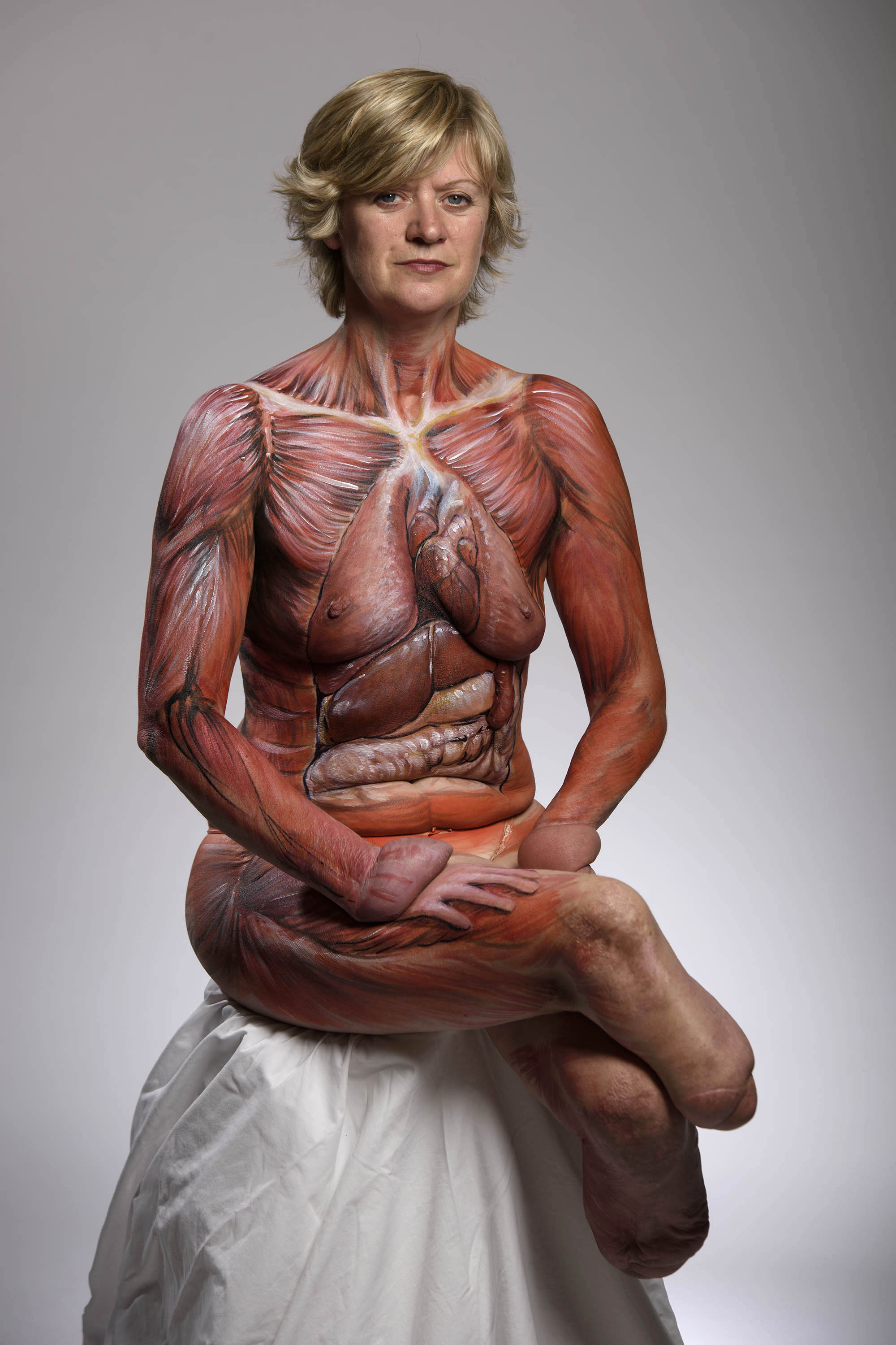 ONE USE ONLY Undated handout file photo issued by Finding Your Feet of quadruple amputee Corinne Hutton, with her body painted with organs and tissue that are deemed transplantable in a bid to help raise awareness. The single mother from Glasgow has been on the waiting list for a double hand transplant for two years. PRESS ASSOCIATION Photo. Issue date: Wednesday September 7, 2016. See PA story HEALTH Donation. Photo credit should read: John Linton/PA Wire NOTE TO EDITORS: This handout photo may only be used in for editorial reporting purposes for the contemporaneous illustration of events, things or the people in the image or facts mentioned in the caption. Reuse of the picture may require further permission from the copyright holder. LaPresse Only italy Corinne Hutton posa per la Organ Donation Week 065937